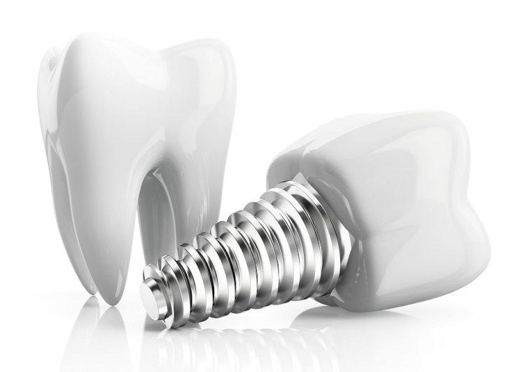 Diş İmplantlarının Ömrü Ne Kadardır?