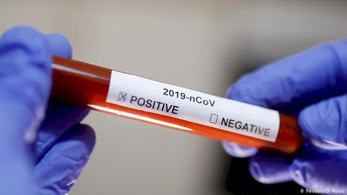 Almanya'da 2 bin 300 sağlık çalışanına koronavirüs bulaştı